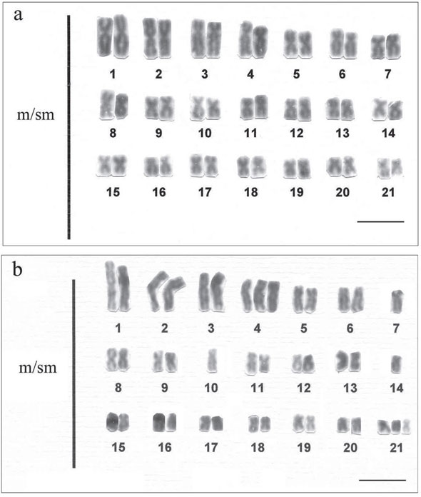 an analysis of the definition of down syndrome Molecular analysis of down syndrome the major breakthrough in molecular biology allowing for the experimental manipulation of dna is the discovery of restriction endonucleases, bacterial.