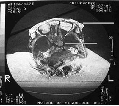 Chinchorro CT Scan