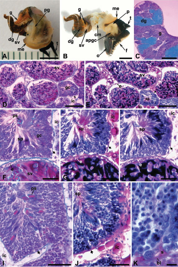 D. Histological organization of the gonad and seminal vesicle;