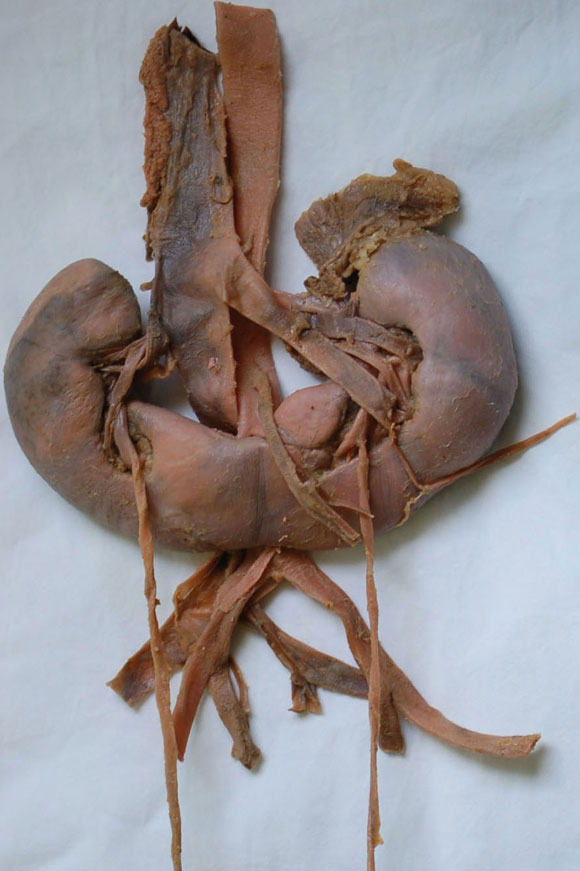 Inferior Mesenteric Artery. Inferior mesenteric artery; 6.