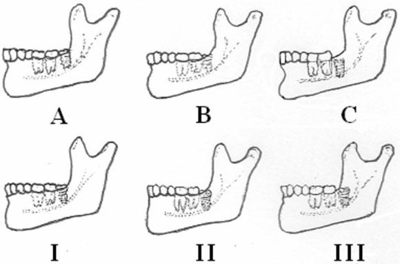 estomatologia: CLASIFICACION DE PELL GREGORY Y WINTER