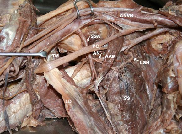 Axillary Nerve Cadaver | www.pixshark.com - Images ...