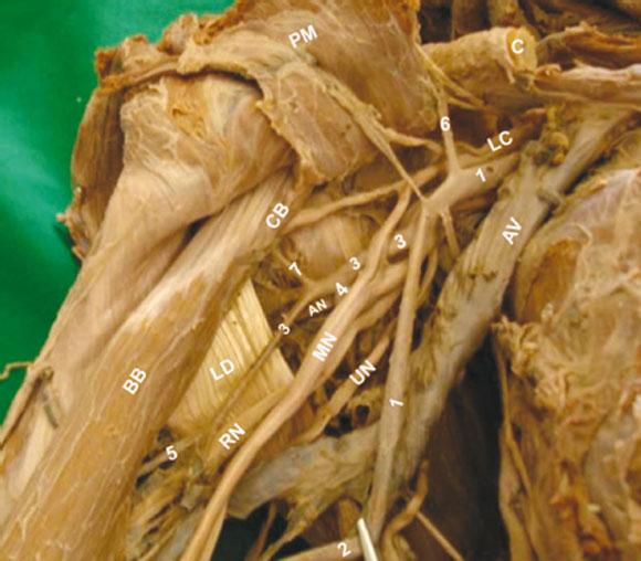 Múltiples Variaciones Arteriales en el Miembro Superior ...