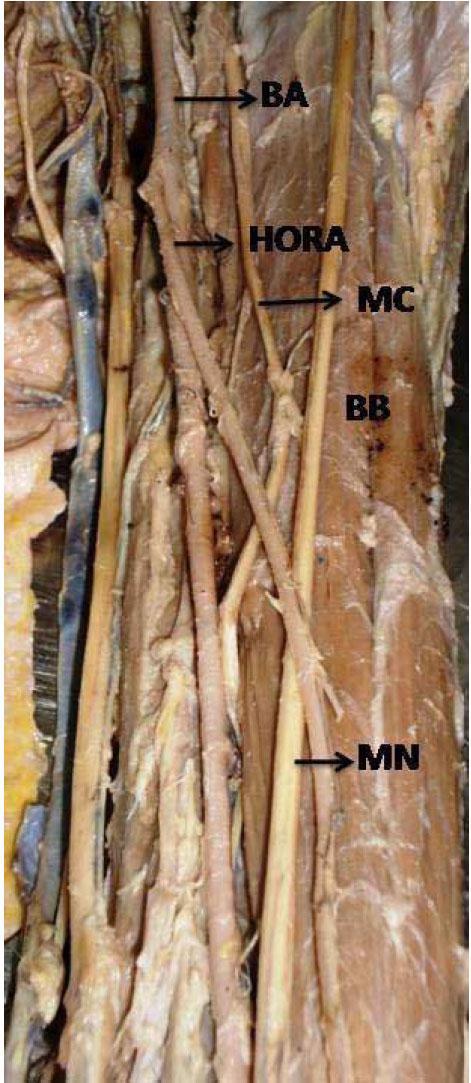 patrón primario de las arterias de los miembros superiores con, Muscles