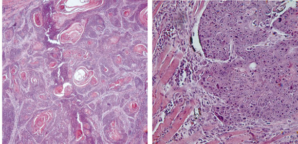 4NQO Carcinogenesis: A Model of Oral Squamous Cell Carcinoma