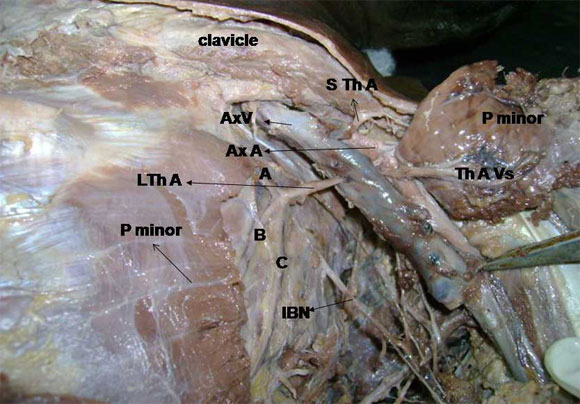 Axillary artery cadaver