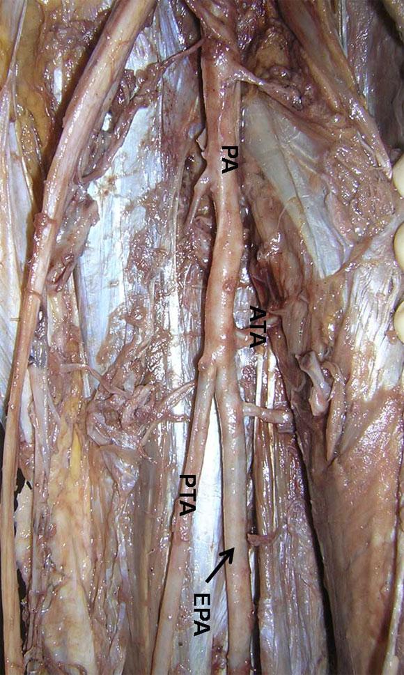 International Journal of Morphology - Arteria Tibial Anterior ...