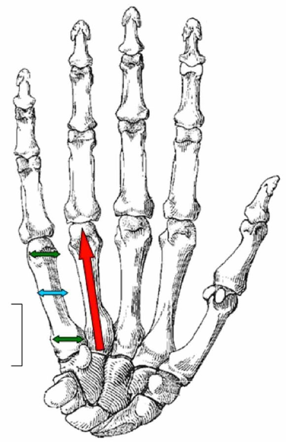 Caracter sticas biom tricas de los huesos metacarpianos en for Cuarto y quinto metatarsiano