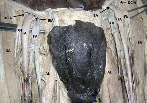 ramas inusuales de la arteria femoral en el triángulo femoral, Muscles