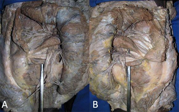 Ausencia Bilateral del Músculo Gemelo Superior en un ...