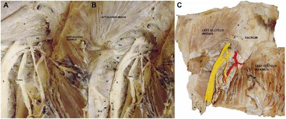 Relación Inusual entre el Músculo Piriforme y los Nervios ...