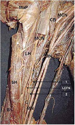 Tercera Cabeza del Músculo Bíceps Braquial Asociada a la ...
