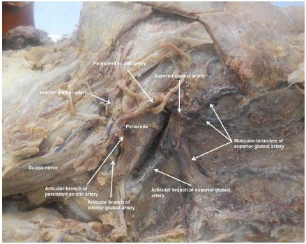 Superior Gluteal Artery Cadaver | www.pixshark.com ...