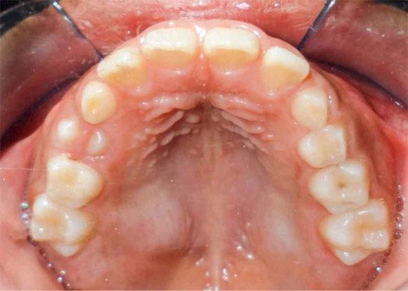 pleomorphic adenoma palate fokozott hemoglobin a prosztatitisben