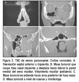 Epistaxis approach to the patient with nasal and for Pared lateral de la cavidad nasal