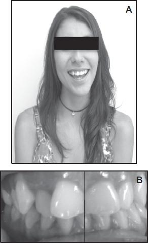 craneo condilar Crecimiento facial