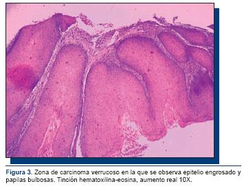 carcinoma verrugoso de pene