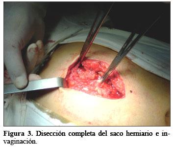 Hernioplast 237 A Incisional Con Prolene Hernia System