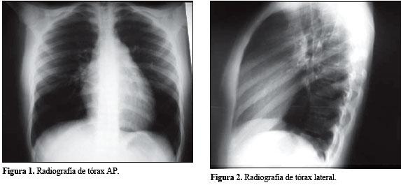 Hipertensión pulmonar idiopática en pediatría: Caso..
