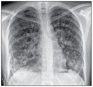 Multiple lumbar disc protrusions hemangio hemangioma images of