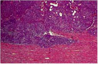 ginecologia tumores: