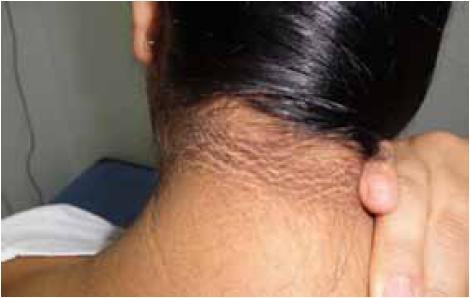 Si es posible usar contra la celulitis la crema a la mamada