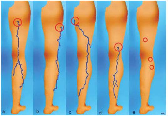 Las piernas de una nena en la combi yuc urbano - 1 4