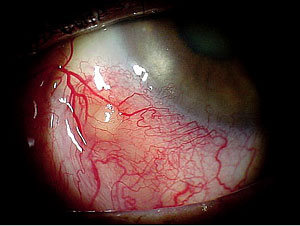 ocular tuberculosis Looking for tuberculosis, ocular find out information about tuberculosis, ocular contagious, wasting disease caused by any of several mycobacteria the most common form of the disease is tuberculosis of the lungs , but the intestines.