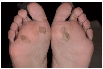 La pigmentación de la piel a las mujeres
