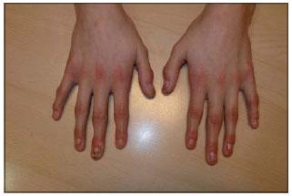 What Is Ect >> Patología ungueal no micótica en pediatría