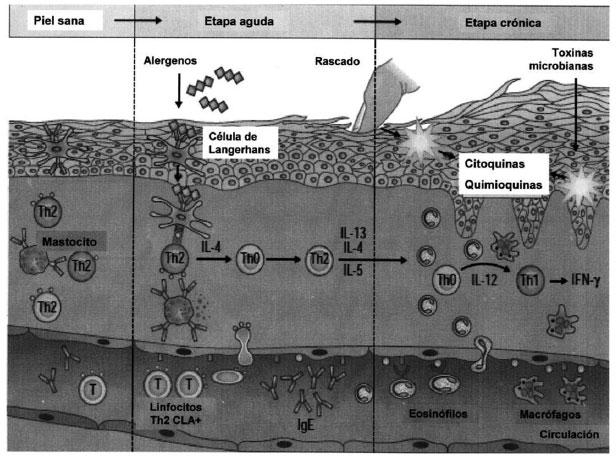El esquema del tratamiento atopicheskogo de la dermatitis por los preparados