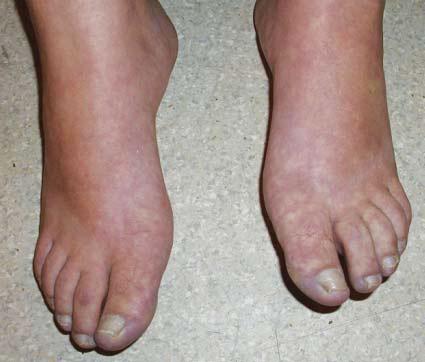 La tromboflebitis los síntomas en la mano