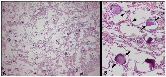 Eosina NA 2 Soluzione Cutanea  soluzione Eosina